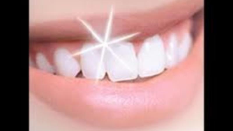 Clareamento Natural 4 Dicas Para Branquear Os Dentes Em Casa